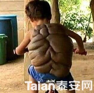 看得让人揪心,乌龟壳男孩!图片