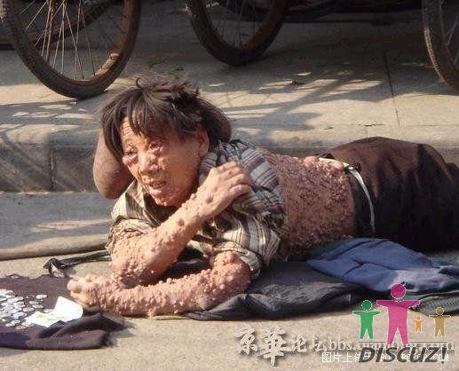 可怜的女乞丐得了什么病了(图,慎入!